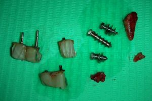 Fallimento implantare - impianti fratturati